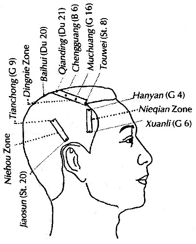 Scalp Acupuncture Diagram